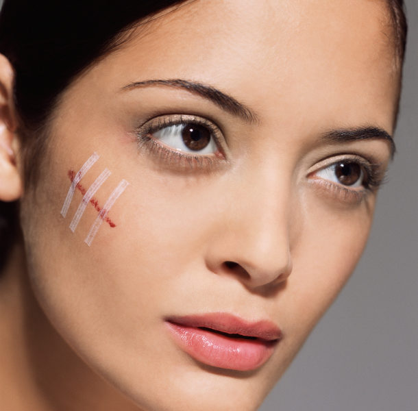 Scars Explained – Definition, Types, Treatments